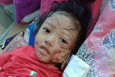 Nabilatus Sholihatul Faridah  Bocah 4 Tahun Mengidap Penyakit Kanker Kulit